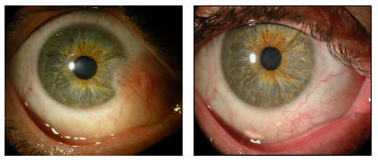 pterygium before after